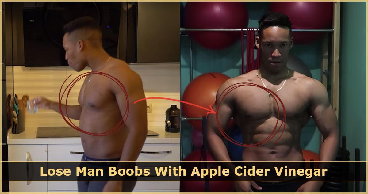 Lose Man Boobs With Apple Cider Vinegar