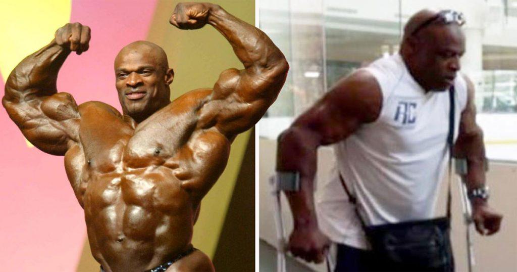 Bodybuilding Legend Crippled